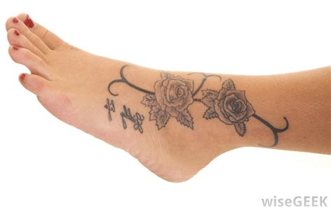what are the different types of tattoo removal with