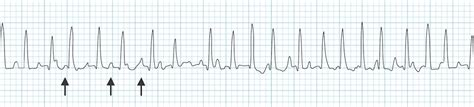 multifocal atrial tachycardia in the fast