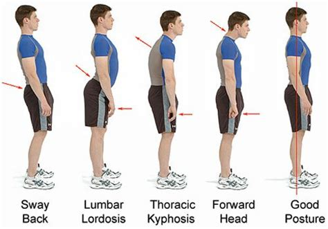 Evolution Ball Chair 6 Bad Postures That Are Ruining Your Health Amp How To