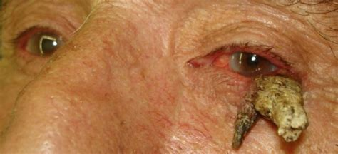 cutaneous horn cutaneous horn pictures symptoms causes removal treatment