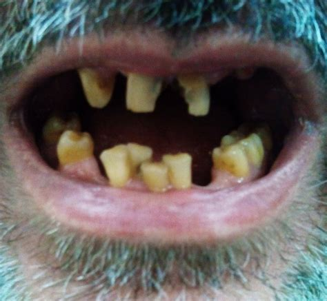 A Tooth For A Tooth tooth discoloration