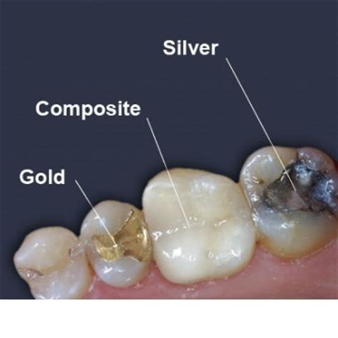 tooth repair ealing fillings acton dental crowns hanwell