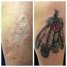 tattoo turned keloid surgical scar coverup tattoo pictures to pin on pinterest