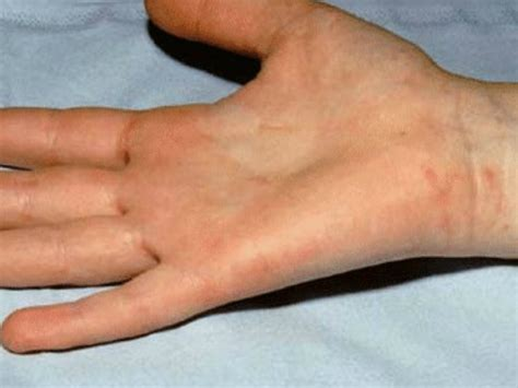 scabies treatment images