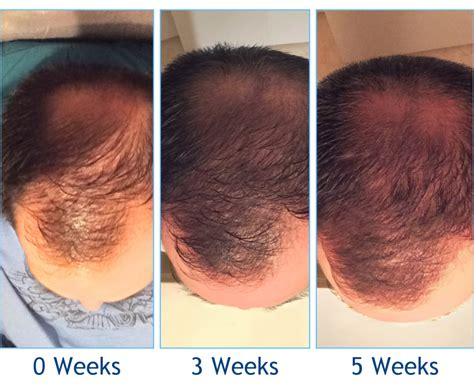 can platelet rich plasma stop hair loss and grow new hair platelet rich plasma acell hair loss treatments