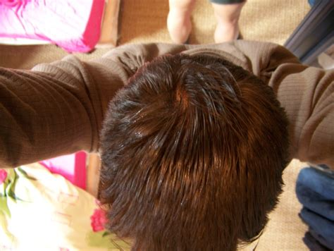 hair loss help forums you experienced