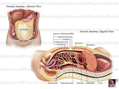 passing stool after c section intestinal obstruction repair causes symptoms treatment