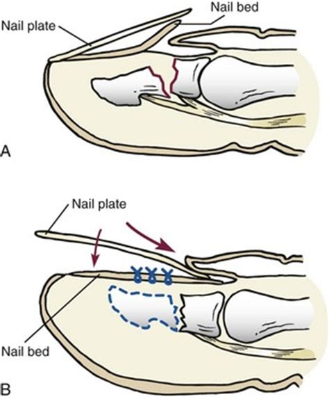 nail bed repair toenail abnormalities musculoskeletal key