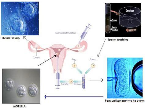 langkah langkah proses bayi tabung