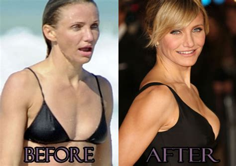 Push Up Or Surgery For by Cameron Diaz Plastic Surgery Before And After