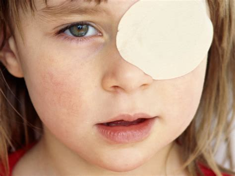 Wandering Eye by Patching Drops Improve Vision Term In Amblyopia