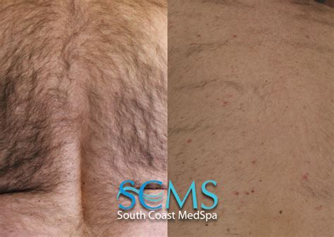 orange county tattoo removal south coast medspa hair removal los angeles laser html
