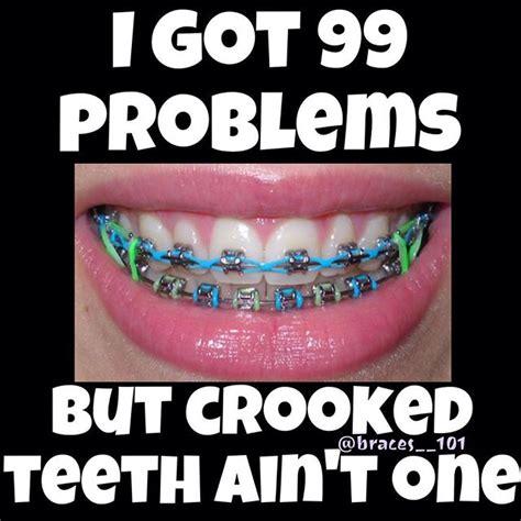 Brace Face Meme - braces teeth braceface on instagram