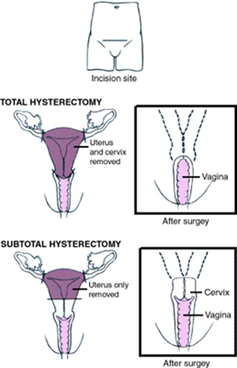 hysterectomy diagram related keywords suggestions for hysterectomy diagram