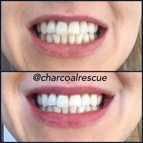 twins charcoal teeth whitening powder charcoal rescue