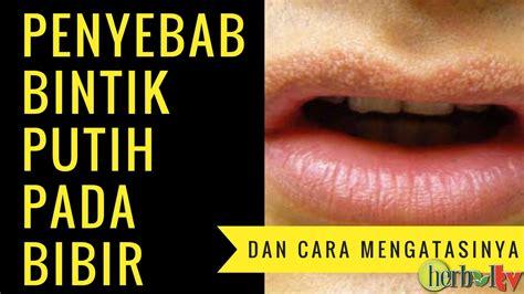 penyebab gejala dan cara mengatasi bintik putih pada bibir