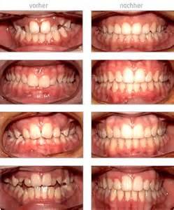 zahnspange vorher nacher festsitzende zahnspangen for a better smile