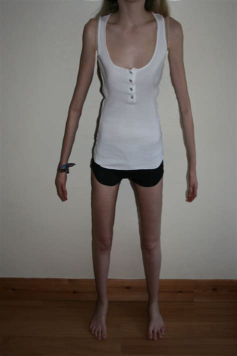 Is Anorexic by Anorexia Bonesandbeauty
