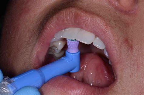 teeth cleaning dental cleaning glendale az dentist dr brady