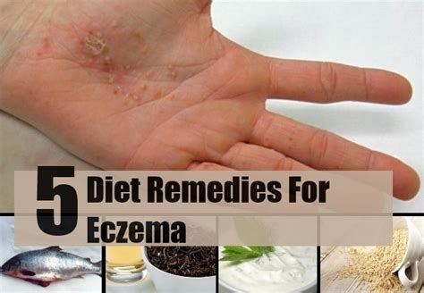5 effective diet remedies for eczema easy treatments