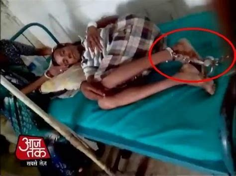 how to tie a girl to your bed arrested sfi activist chained to hospital bed for two days