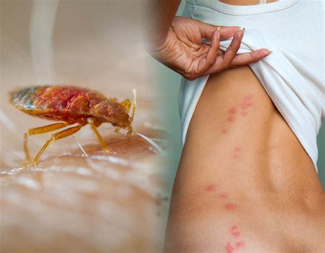 bed bug bites  signs        rid   expresscouk