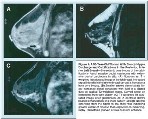 New Mri Testing For Breast Cancer Screening by The Application Of Breast Mri In Staging And Screening For