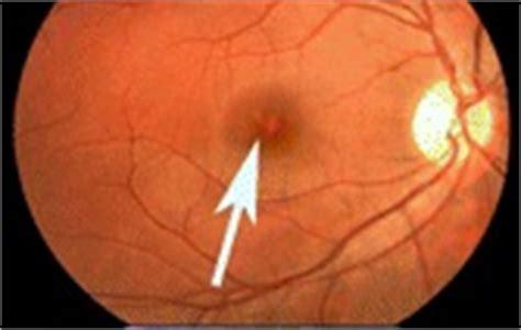 diode laser eye damage eye effect or injury laser pointer safety news of non aviation incidents arrests etc