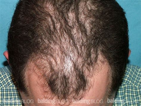 Finasteride Hair Shedding are minoxidil and propecia worth using with photos wrassman m d baldingblog balding