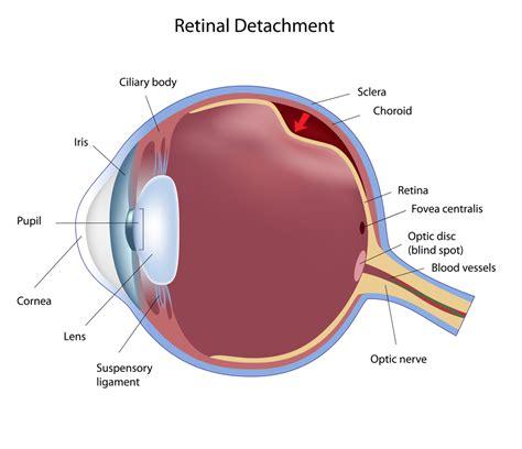 Detached Retina Blindness detached retina bloomington torn retina chaign il