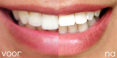 Eigen Tanden Polijsten by Ziza Smile Tanden Bleken Op Natuurlijke Basis Beautylab Nl