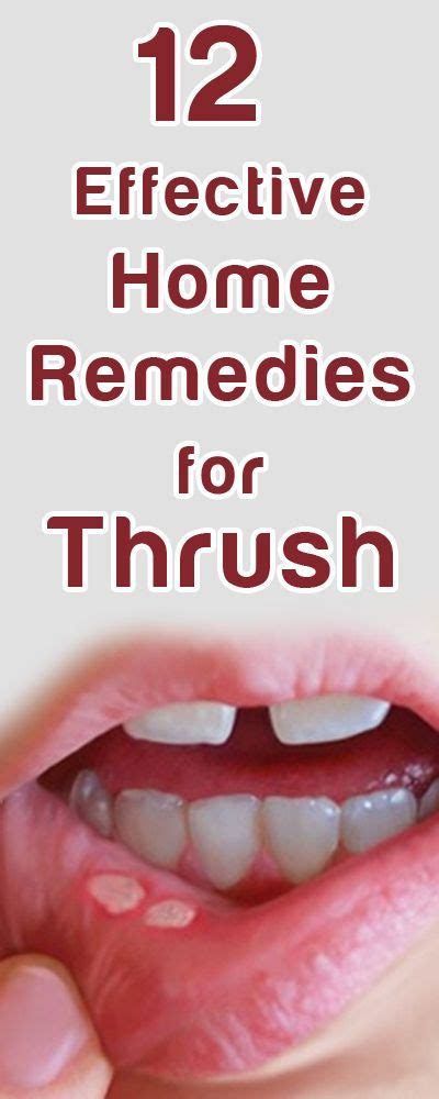 home remedies for thrush home home remedies and remedies