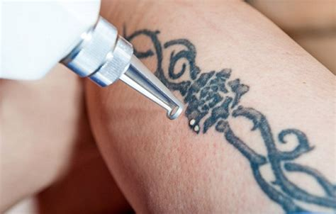 tattoo removal in delhi side effects of permanent tattoos on skin plus
