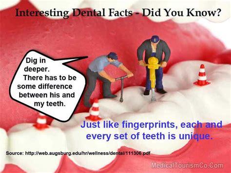 interesting dental fact cheap dental implants dental