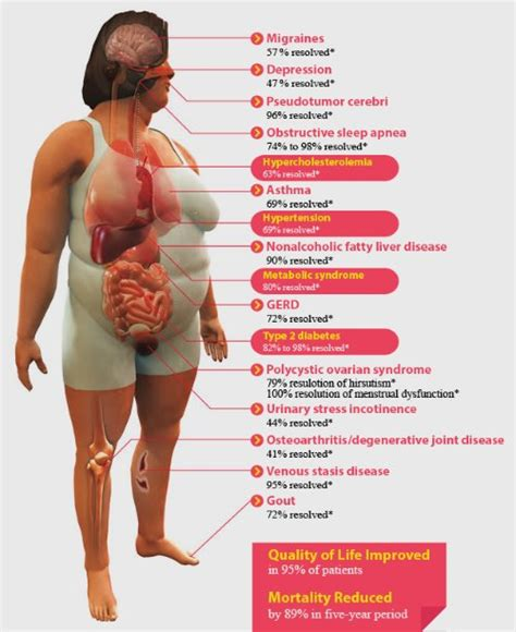 Loss Not Weight Loss For Diabetes reduce your risk of weight loss surgery diabetes