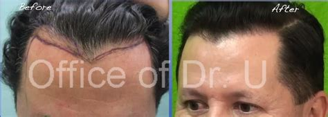 before and after widows peak widow s peak hairline repair with ugraft fue