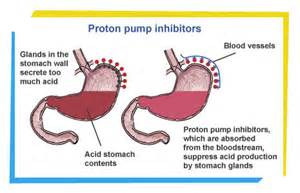 Proton Stomach Heartburn Clinic