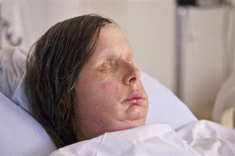 Has Disfigured Eyelids by Transplant Patient Who Was Attacked By Chimpanzee Is
