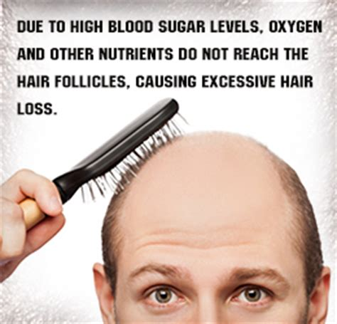 Hair Loss Diabetes Type 2 what type of diabetes is non insulin dependent diabetes