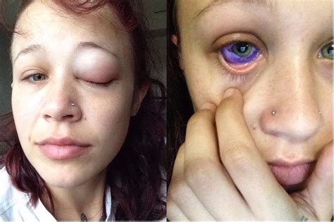eyeball tattoo facebook this model s eyeball tattoo went horribly wrong and left