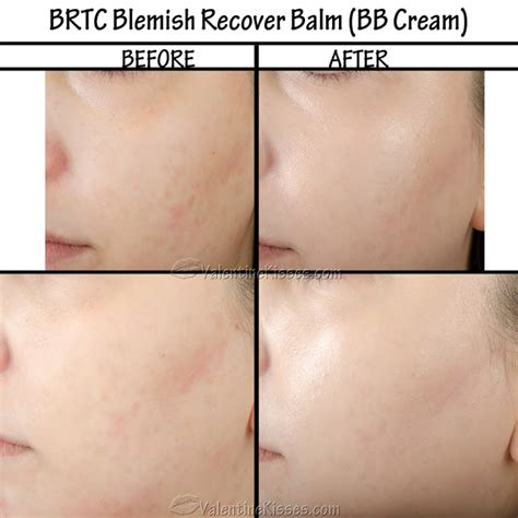 Blemish Serum By Brtc kisses brtc blemish recover balm bb