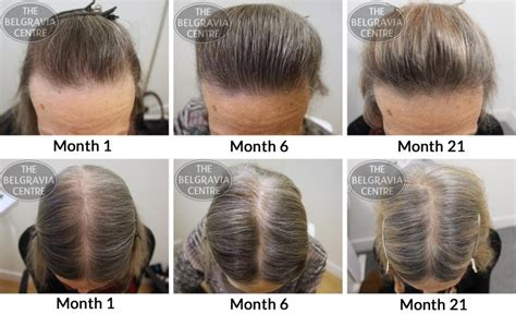 ways to hide a women receding hairline hair growth success no longer do i need to wear hats