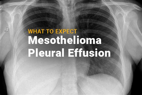mesothelioma mayo what to expect when you have mesothelioma pleural effusion mesotheliomaguide