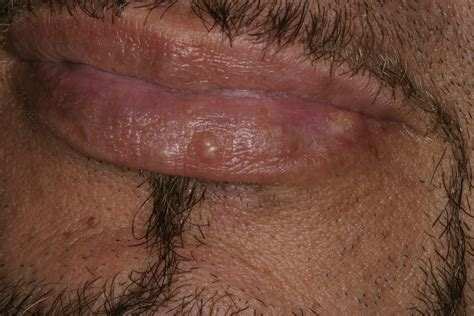 diode laser for cold sores cold sore pictures