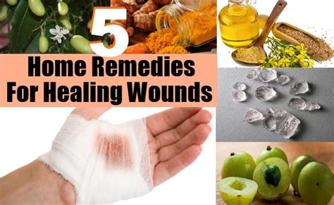 home remedies for healing wounds treatments for