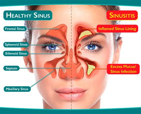 diagram of sinus cavity image gallery sinuses diagram