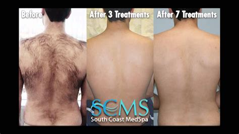 laser hair removal results    treatments