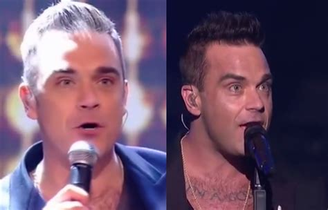 transplant hair second round draft why did robbie williams have a hair transplant celeb