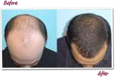 30000 hair graft cost baldies get a head full of hair at low costs perfect