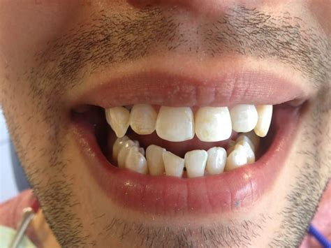 david   invisalign   crowded teeth